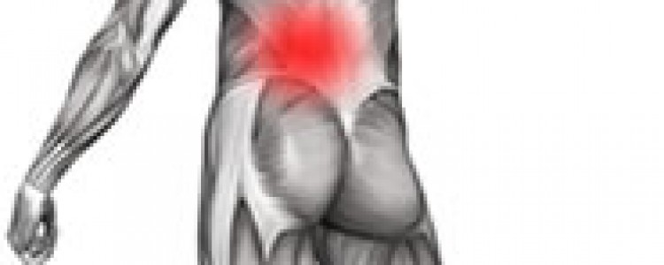 Trigger Points & Myofascial Pain Syndrome